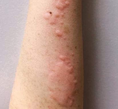 蕁 突発 麻疹 性